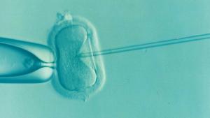Eizelle Befruchtung